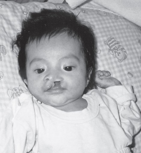 diana-cleft-lip-and-palate