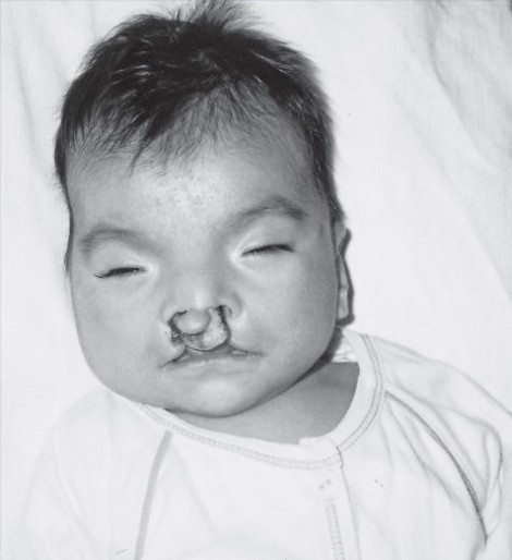 orlando-cleft-lip-and-palate
