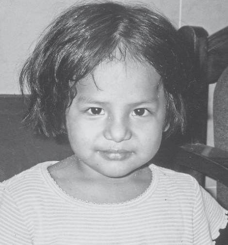 Shania - Tuberculosis