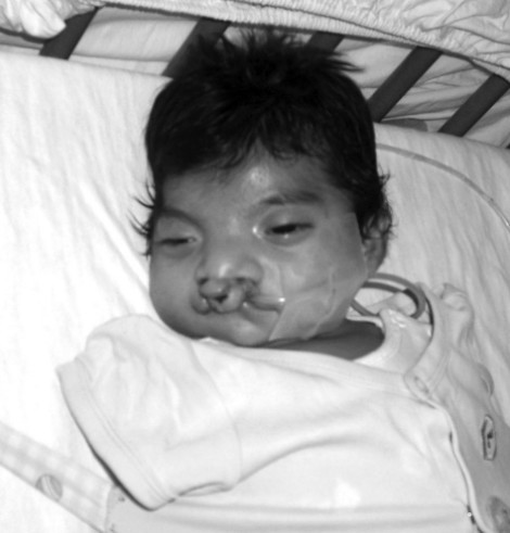 Anderson -Cleft Lip & Palate, Malnutrition