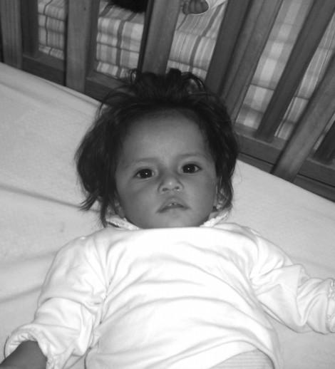 Maricielo - Severe Malnutrition