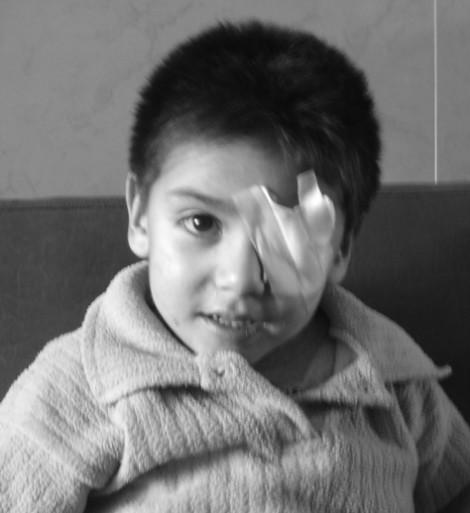 Esli - Cerebral palsy