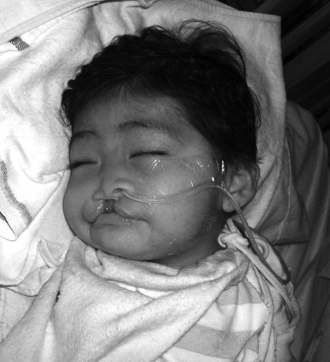 Nicol - Cleft lip and palate