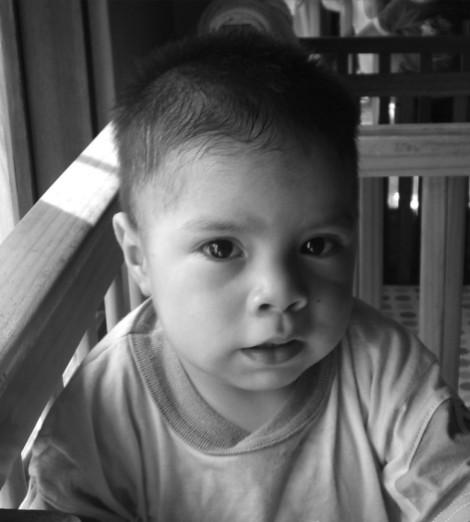Yostin - Congenital Heart Disease. Malnutrition