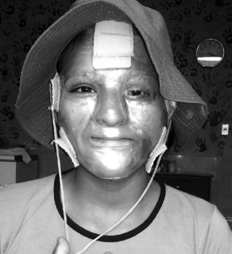 Sheyla - Facial and Body Burns