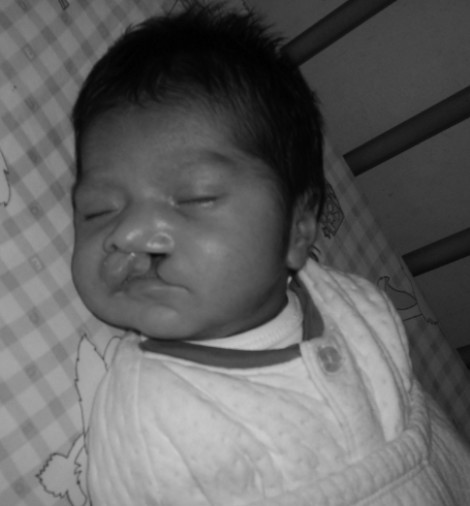 Carlos - cleft lip and palate