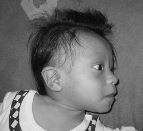 Jehyson - Down's Syndrome, Severe Malnutrition