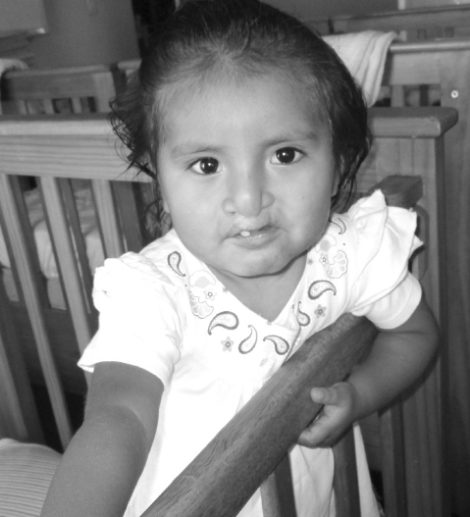 maria-cleft-lip-and-palate